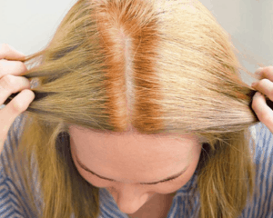 Hot roots appearing on previously colored hair